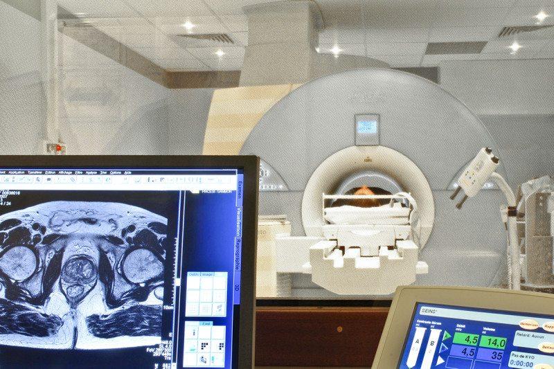 MRI scanning