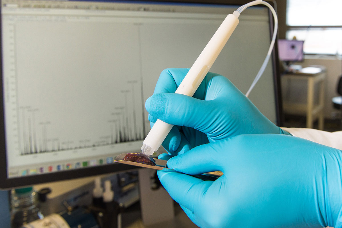 MassSpec cancer pen can identify tumours in ten seconds