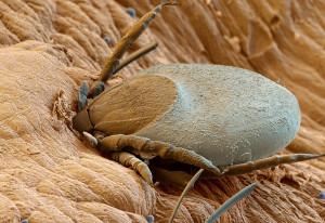 A tick feeding on human blood
