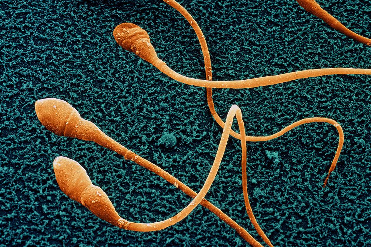 Sperm age calculator tells men how decrepit their sperm are