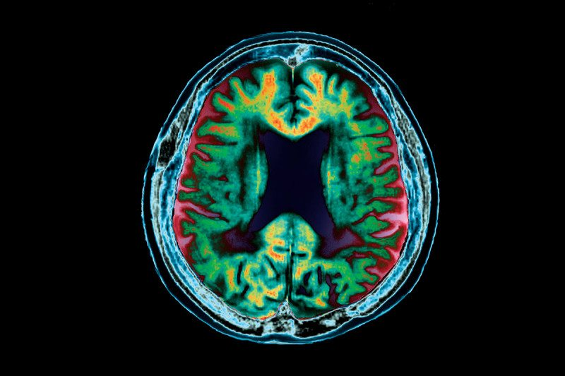 A brain destroyed: deep folding and shrinkage of tissue appear green/orange in MRI scan