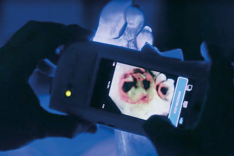 wound scanner