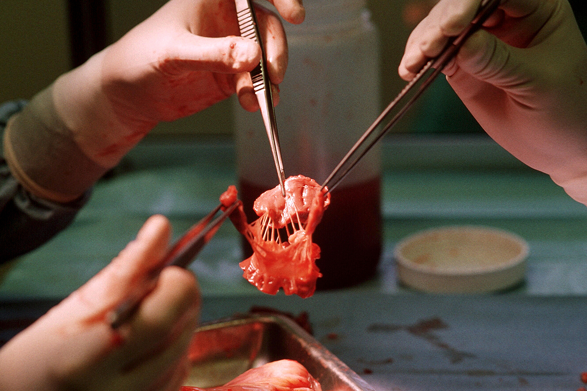 Freeze-dried valves used in animal heart surgery for first time