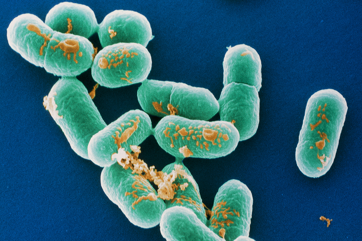Source of world's biggest listeria outbreak still unknown