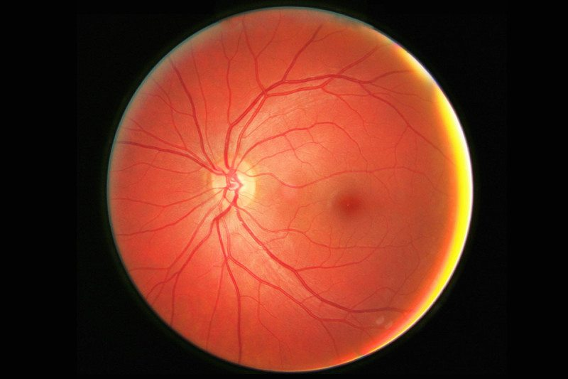retina, macula, fovea and related structures