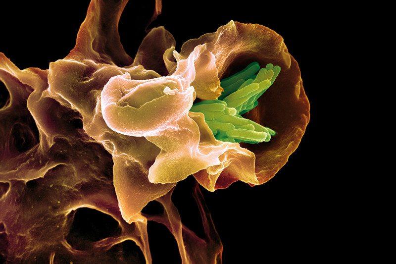 c0066705-macrophage_engulfing_tb_bacteri