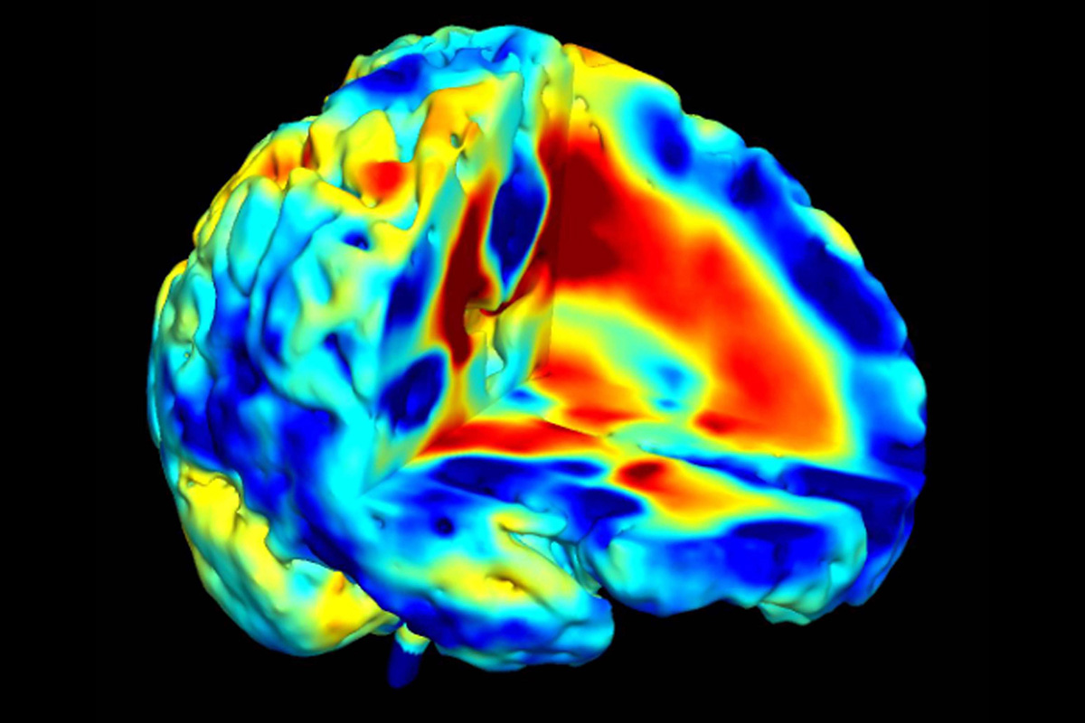 First anatomical evidence of several types of schizophrenia