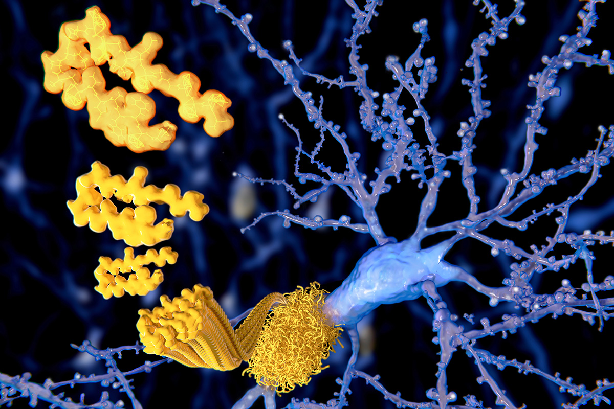 Researchers Propose New Alzheimer's Definition Based on Biology