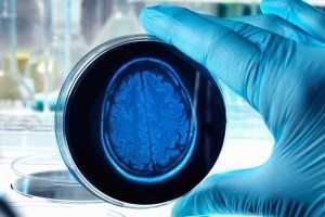 A brain shape drawn on a petri dish held by a gloved hand