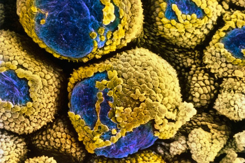 Electron micrograph of polycystic ovaries