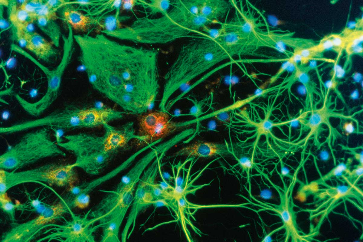 Brains grow brand new neurons after experimental drug injection