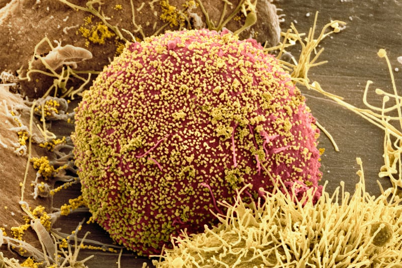 A cell infected with HIV