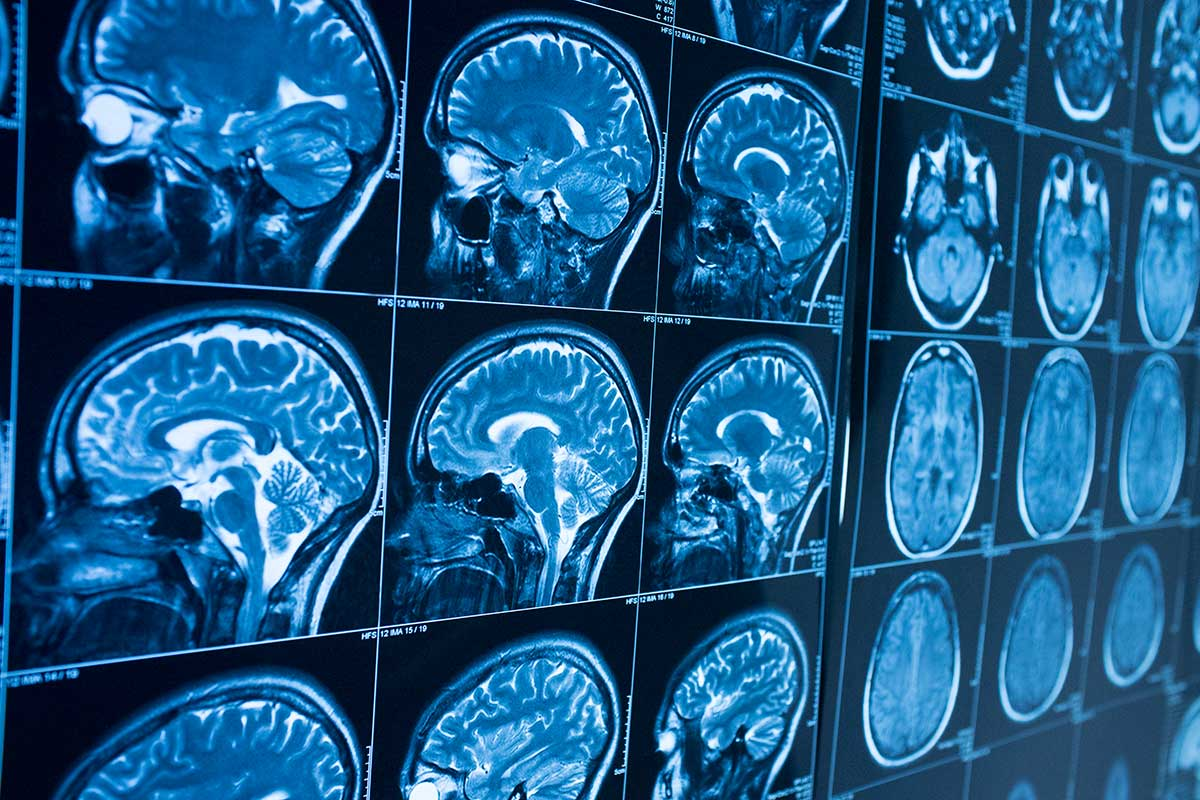 A wall of brain scans