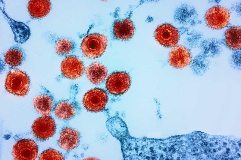 The herpes virus HHV-6 has been found in the brain of people with Alzheimer's disease.