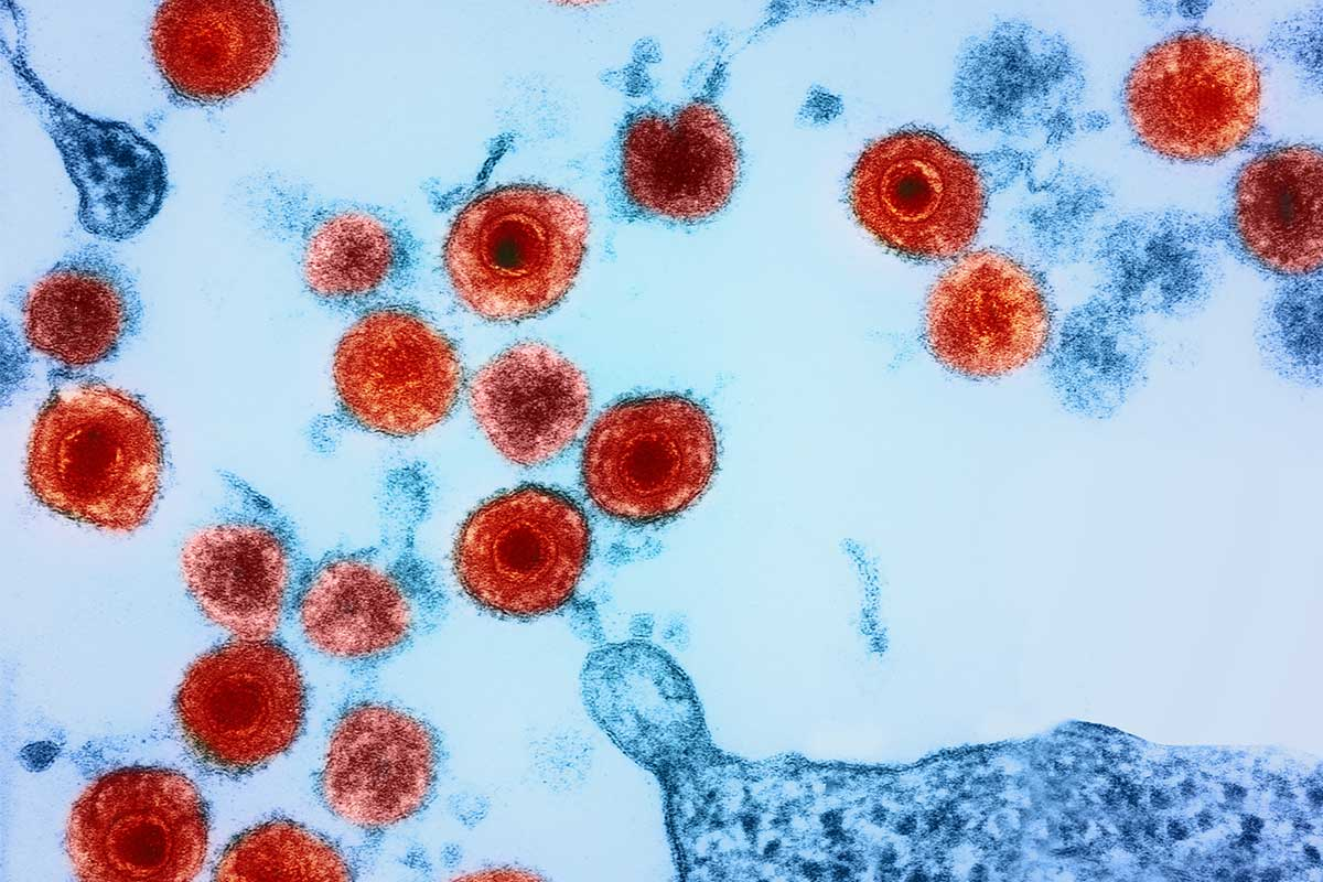 Herpes viruses in the brain linked to Alzheimer's disease