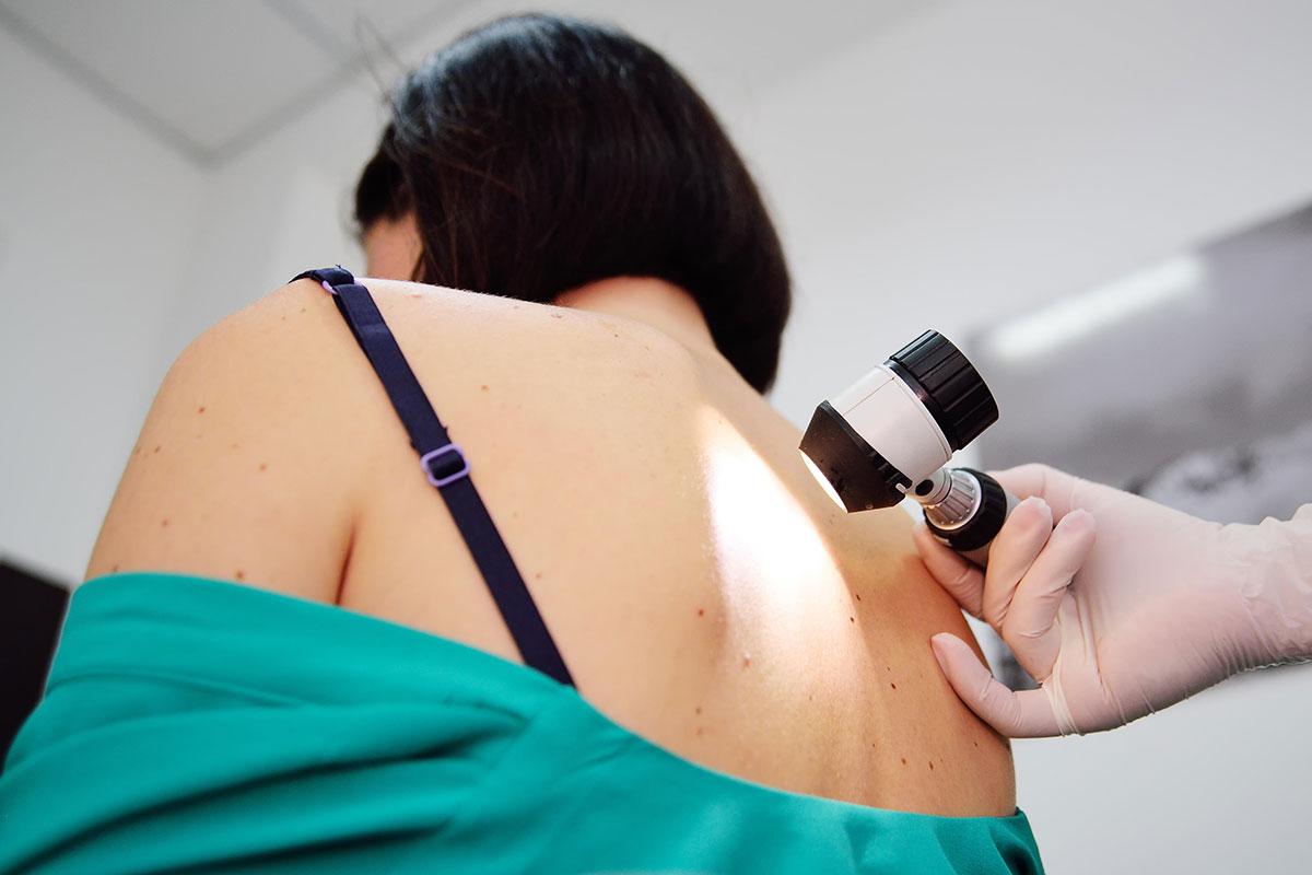 Blood test detects melanoma skin cancer while...