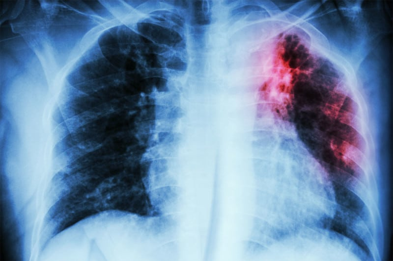 Altered gene activity in a newly discovered type of cell may be to blame in cystic fibrosis