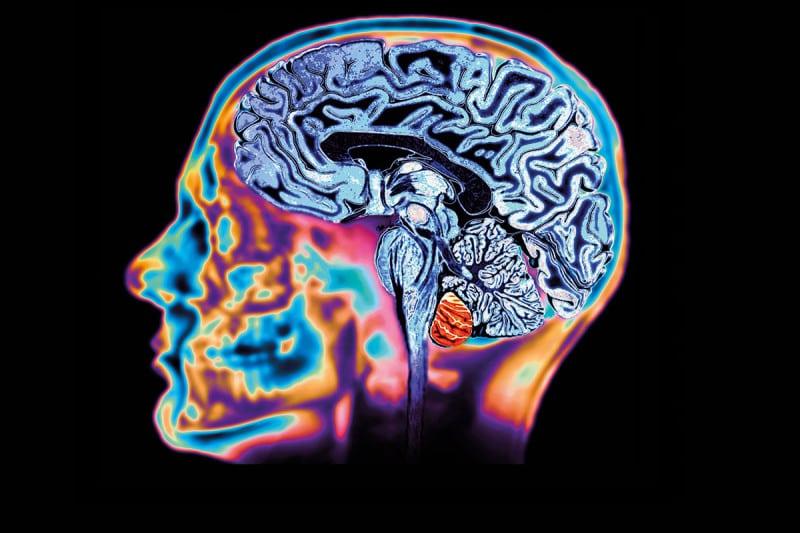 A brain scan of a healthy brain